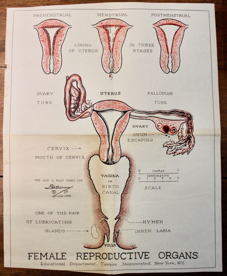 """Female Reproductive Organs."". Dickinson, Robert."